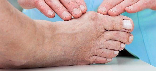 dimexid a lábujjak artritiszében