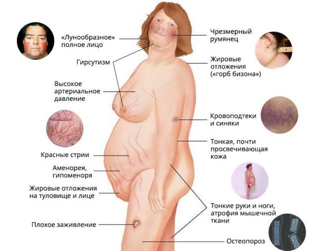 Cum Cushing; s Boala vă afectează metabolismul și greutatea